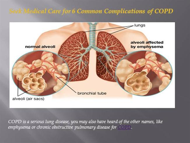 an overview of the causes and effects of copd disease Overview emphysema healthcommunities patient education information about emphysema, which is a chronic obstructive pulmonary disease often caused by smoking.