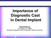 Importance of Diagnostic Cast in Dental Implant