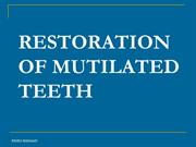 Treatment of mutilated teeth by Dr.Fayez Hassaan