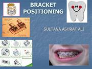BRACKET POSITIONING.ppt final