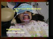 Root canal treatment& crown