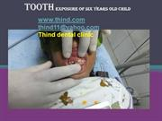 tooth exposuer