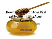 How to Get Rid of Acne Fast at Home Instant Acne Removal