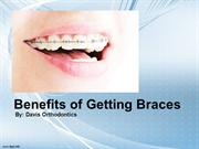 Benefits of Getting Braces