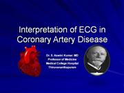 Interpretation of ECG in Coronary Artery