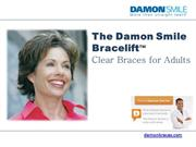 Cosmetic-Adults-Braces-Damon-System