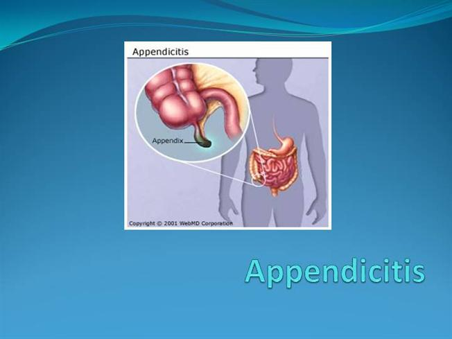Laparoscopic appendectomy. Ppt video online download.