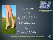 Varicose Vein Treatment and Spider Vein Removal In Forest Hills