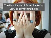 The real cause of acne; bacteria, diet, or something else