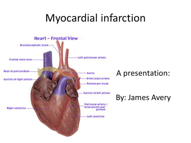 Care of Patient With Myocardial Infarction |authorSTREAM