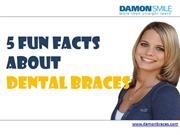 5 Fun Facts About  Dental Braces