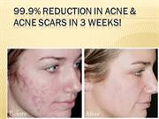 Acne No More Review With Special Discount and Bonuses