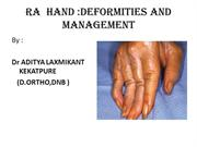 Deformities in RA hand and their management