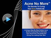 Mike Walden: Acne No More PDF-Book