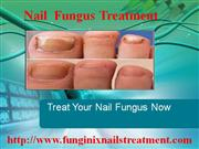 Use Funginix  To  Treat Nail Fungus