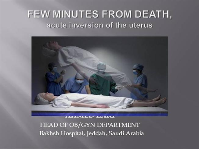 Management of acute uterine inversion by dr shashwat jani.