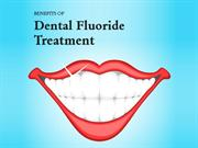 Benefits of Dental Fluoride Treatment
