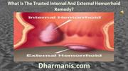 What Is The Trusted Internal And External Hemorrhoid Remedy?