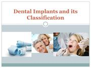 Dental Implants and its Classification