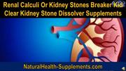 Renal Calculi Or Kidney Stones Breaker Kid Clear Kidney Stone Dissolve