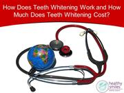 How Does Teeth Whitening Work and How Much Does Teeth Whitening Cost