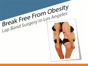 Less invasive weight loss procedure - Lap band surgery in Los Angeles