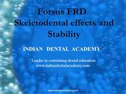 Forsus FRD/fixed orthodontic courses by Indian dental academy