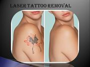 Laser Tattoo Removal Los Angeles,