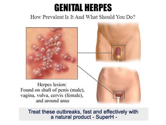 Get a Guide to Naturally Cure Herpes Genital Now! |authorSTREAM