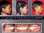 CLASS III MALOCCLUSION -VINEETH /fixed orthodontic courses by IDA