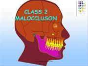 CLASS2 MALOCCLUSION /fixed orthodontic courses by IDA