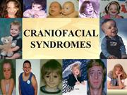 CRANIOFACIAL SYNDROMES /fixed orthodontic courses by IDA
