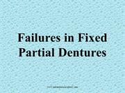 Failures in FPD /fixed orthodontic courses by IDA