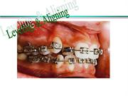 LEVELING & ALIGNING /orthodontic courses by IDA