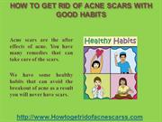 How To Get Rid Of Acne Scars With Good Habits