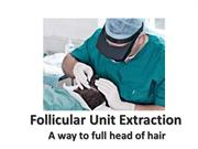 Follicular Unit Extraction (FUE) Treatment
