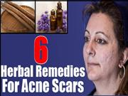 6 Valuable Herbal Remedies For Acne Scars