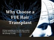 Why Choose a FUE Hair Transplant