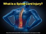Spinal Cord Injury & Treatment