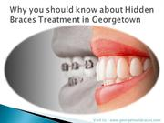 Why you should know about Hidden Braces Treatment in Georgetown