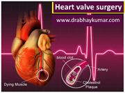Heart valve surgery in Delhi