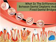 What Is The Difference Between Dental Implants And Fixed Dental Bridge