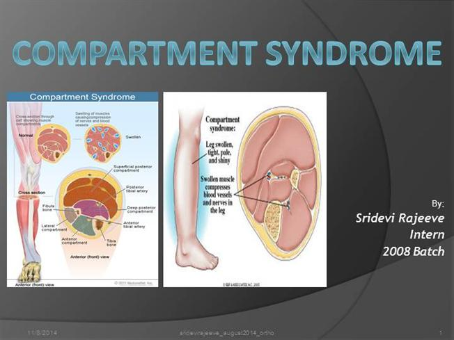 Compartment Syndrome AuthorSTREAM