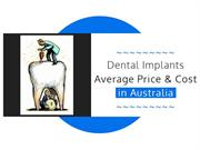 Average Cost of Dental Implants And the Surgical Procedure ...