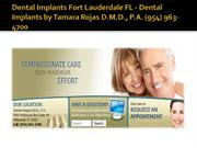 Dental Implants Fort Lauderdale FL - Dental Implants