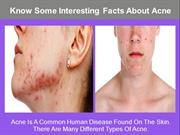 Know Some Interesting Facts About Acne
