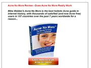 Acne No More Review - Does Acne No More Really Work ???