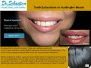 Tooth Extractions in Huntington Beach