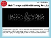 Transplant Hair Surgery Results