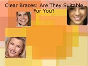 Clear Braces- Are They Suitable For You
